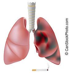 vs., pulmão, smoker's, saudável