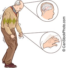 wandelende, parkinson, symptomen, vector, illustratie, aold...