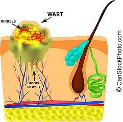 wart., infographics., ilustración, aislado, fondo., skin., vector, estructura