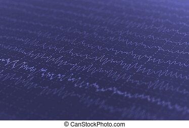 wave oscillations, brain waves on encephalogramme