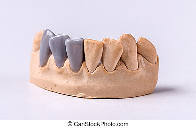 Wax dental prosthesis on the chalk model