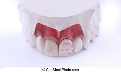 Wax pattern teeth dental crowns on model, metal free - front view .Ceramic front veneers isolated on black background.