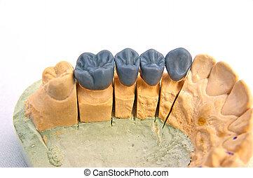 Wax teeth model, close image