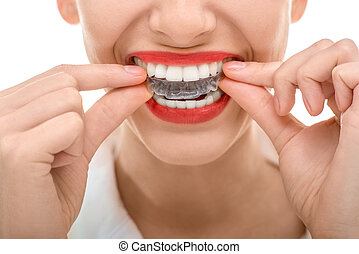 Wearing orthodontic silicone trainer - Closeup portrait of ...