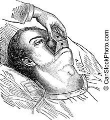 weinlese, engraving., chloroform, kegel, anwendung