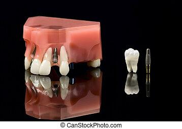 weisheitszahn, implantat, und, z�hne, modell