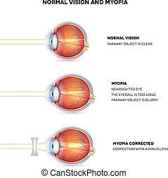 wesen, vision., kurzsichtigkeit, shortsighted., normal