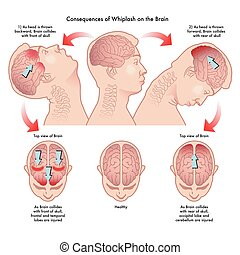 Whiplash and the brain - medical illustration of the...