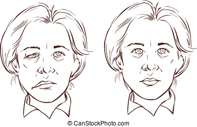 white background vector illustration of a facial lopsided...