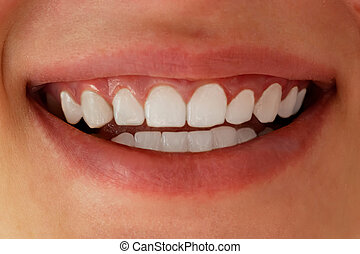White teeth close-up. Dental whitening.