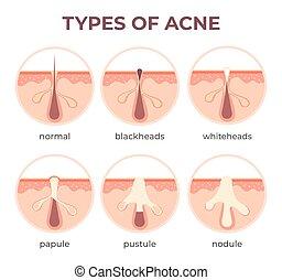 whitehead., arten, ansicht, haut, infektion, vektor, blasen, pickel, anatomy., zerlegbar, krankheiten, blackhead, infographic, akne, pore, struktur