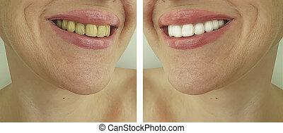 whitening, médico, mulher, antes de, após, dentes