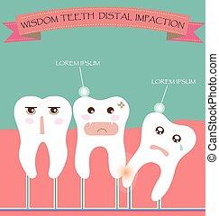 Wisdom Teeth Distal Impaction