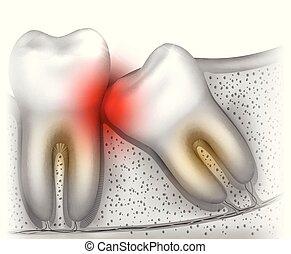 Wisdom tooth eruption problems illustrated anatomy