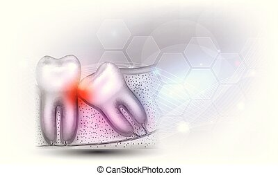 Wisdom tooth eruption problems illustrated anatomy on a...