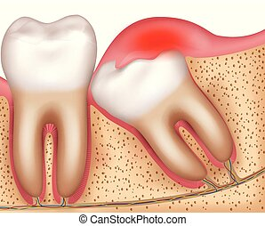 Wisdom tooth eruption problems inflamed gums illustrated...