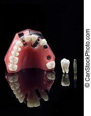 Real Human Wisdom tooth, Implant Dental and Plastic Teeth Mmodel over black