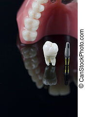 Wisdom tooth, Implant and teeth model