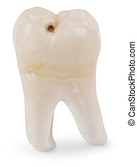 Wisdom Tooth with Cavity - Human wisdom tooth isolated on...