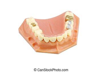 (with, דגמן, שונה, של השיניים, treatments)