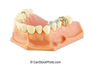 (with, modell, verschieden, dental, treatments)