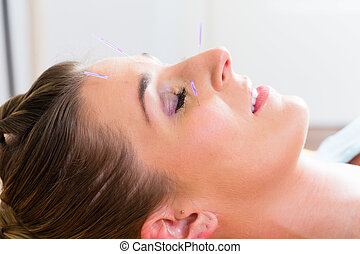 Woman at acupuncture with needles in face