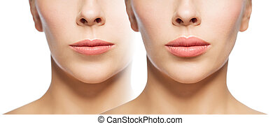 woman before and after lip fillers - people, cosmetology,...
