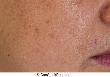 Woman cheek - Closeup of woman cheek with many skin spots
