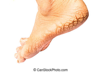 Woman cracked heels with white background, foot healthy...