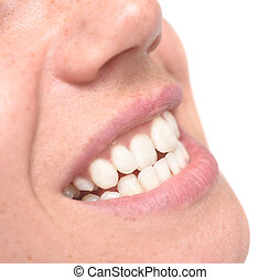 woman crooked teeth