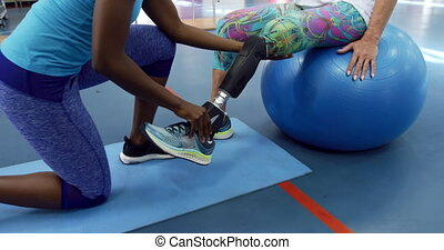 Woman exercising with a prosthetic leg