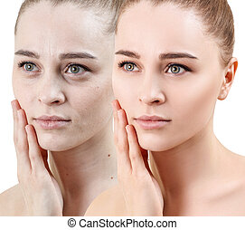 Woman face before and after rejuvenation.