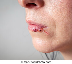 Woman face with injury. Home violence