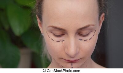 woman plastic surgery markings on face.