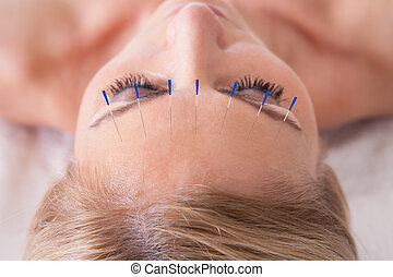 Woman Receiving An Acupuncture Needle Therapy