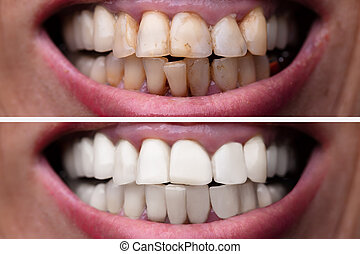 Woman Teeth Before And After Dental Treatment