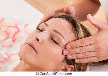 Woman undergoing acupuncture treatment with a line of fine ...