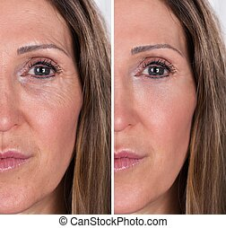Woman With Before And After Rejuvenation