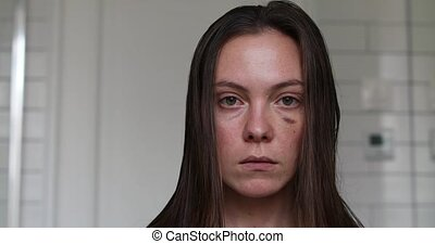 Woman with black eye close-up portrait. Injured woman with...