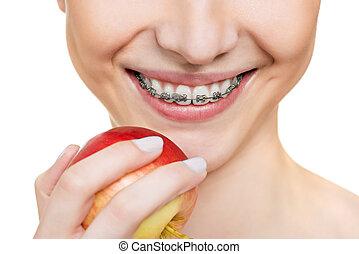 brackets on teeth - woman with brackets on teeth close up