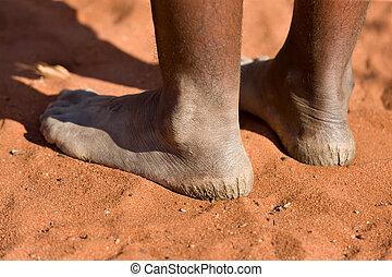 Woman with cracked heels - Kalahari Desert bushman woman...