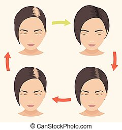 Woman with different stages of hair loss - Female hair loss...