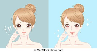 woman with eye bags surgery - woman eye bags before and...