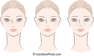 Beautiful woman annoyed with freckles, ages spots, large pores. Isolated on white. Cut out. Vector.
