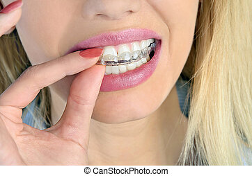 Woman with mouthguard - Woman put mouth guard on teeth
