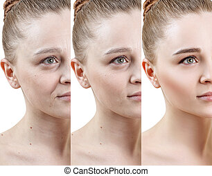 Woman with phase of skin rejuvenation before and after treatment.