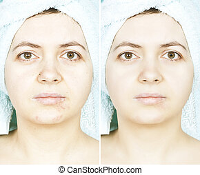 Before and after woman skin with scars