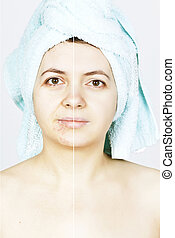 Woman with spotty skin with cicatrices and wrinkles and healed