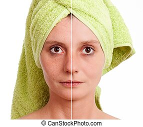 Woman with spotty skin with deep po