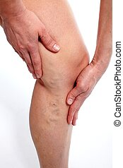 Varicose veins. - Woman with Varicose veins. Health care ...